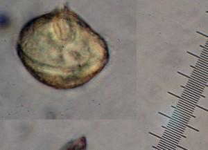 Protoperidinum Dinoflagelate