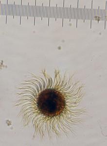Strobilidium epacrum Ciliate Animal Plankton